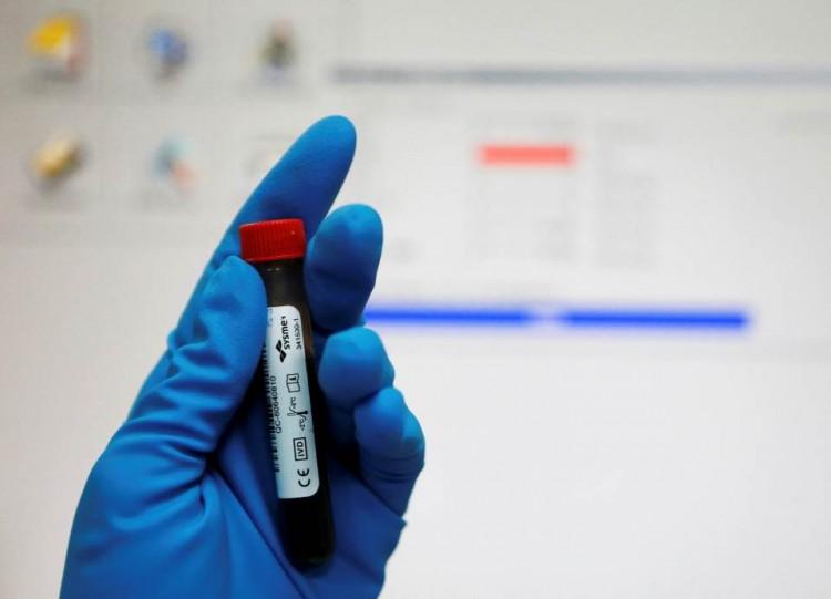 Tubo de sangue em um laboratório anti-doping em Moscou. Crédito Reuters